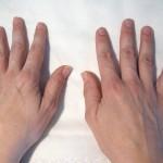 Manos antes sesión de uñas Art en Tall