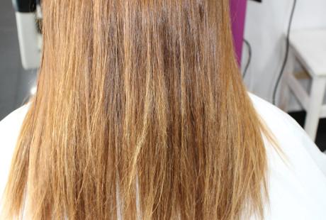 cirugia y varios 056 460x310 Cirugía del cabello.