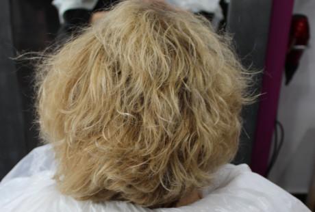 cirugia y varios 060 e1457704370599 460x310 Cirugía del cabello.