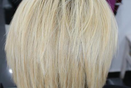 cirugia y varios 063 e1457704541417 460x310 Cirugía del cabello.